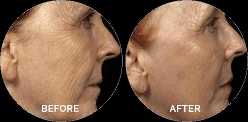 نمونه تصاویر انجام لیزر اربیوم جوانسازی صورت