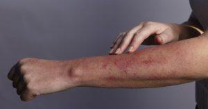 تینا ورسیکالر ؛ علل، نشانه ها، عوامل خطر، تشخیص، درمان و پیشگیری
