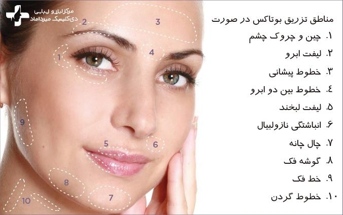 کاربردهای بوتاکس در زیبایی
