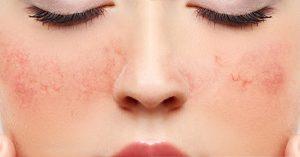 کبودی پوست ؛ انواع، نشانه ها، علل و عوارض