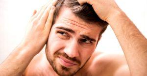 پسوریازیس پوست سر ؛ نشانه ها، علل و روش های درمان