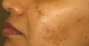 لکه های خورشیدی روی پوست ؛ علل، درمان های طبیعی و راهنمایی پیشگیری از آن