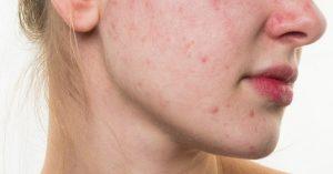 روش های جلوگیری از ایجاد جوش روی پوست