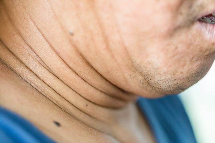 کاهش چربی دور گردن