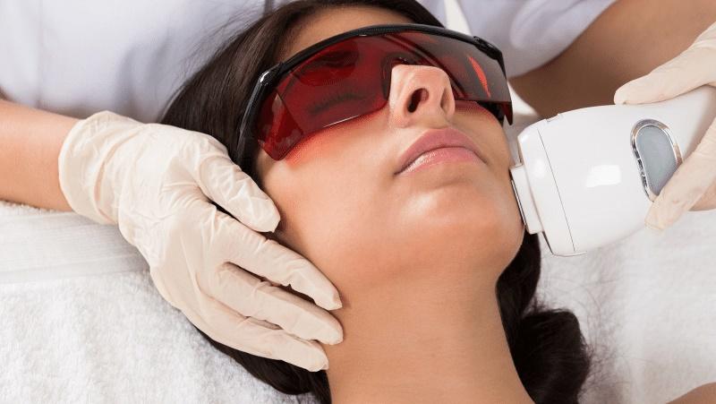 مراقبت های قبل از لیزر درمانی