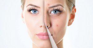 نحوه مقابله و درمان اسکارها، ترک های پوستی و سلولیت