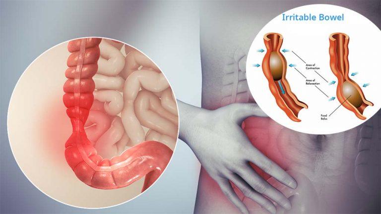 درمان سندرم روده تحریک پذیر